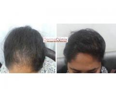 Prp Therapy For Hair Loss Cost in India
