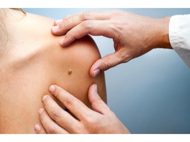 Homeopathy treatment for warts And Skin tags | Homeopathic Doctors In Hyderabad