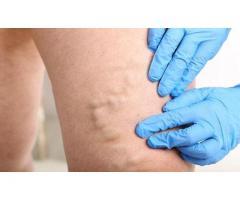 Doctor for Varicose Veins in Delhi | Lybrate