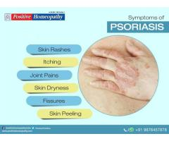 Best homeopathy treatment for Psoriasis | Homeopathic medicine for Psoriasis