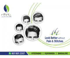 hair fall treatment in hyderabad