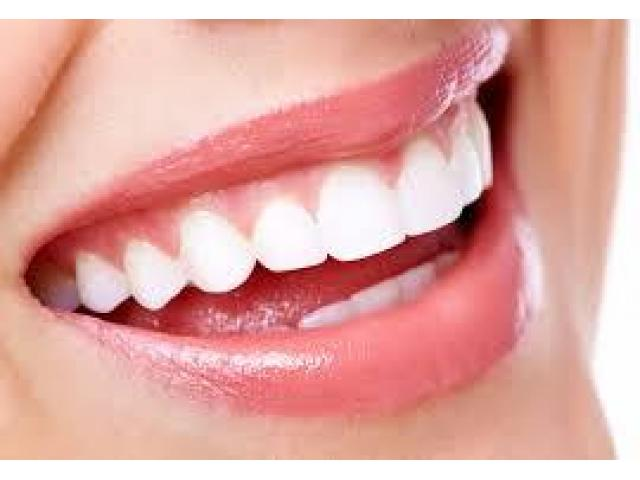 Low-Cost Dentist in Bangalore