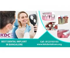 best cosmetic dentist in Vidyaranyapura, Bangalore