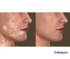 Best Dermatologist in Madinaguda Hyderabad | Laser Vitiligo Treatment