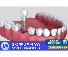 Dentist in Hyderabad | Dental Clinic in Hyderabad