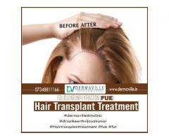 Hair specialist in Bangalore|Hair Care Treatment|Dermaville