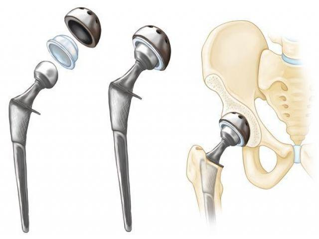Total Hip Replacement surgery in hyderabad