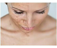 best skin clinic in hsr layout | PIGMENTATION | Dermaville