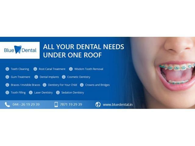 Best Dental Clinic & Hospital in Anna Nagar Chennai | Blue Dental
