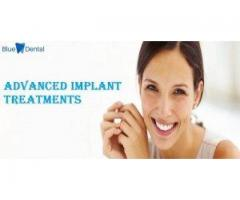 Dental Implants in Anna Nagar Chennai | Blue Dental