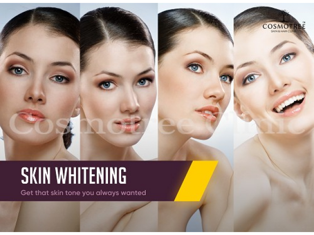Best Skin Whitening Treatment at 40% OFF