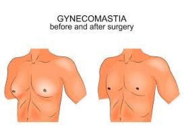 gynecomastia surgery cost in hyderabad