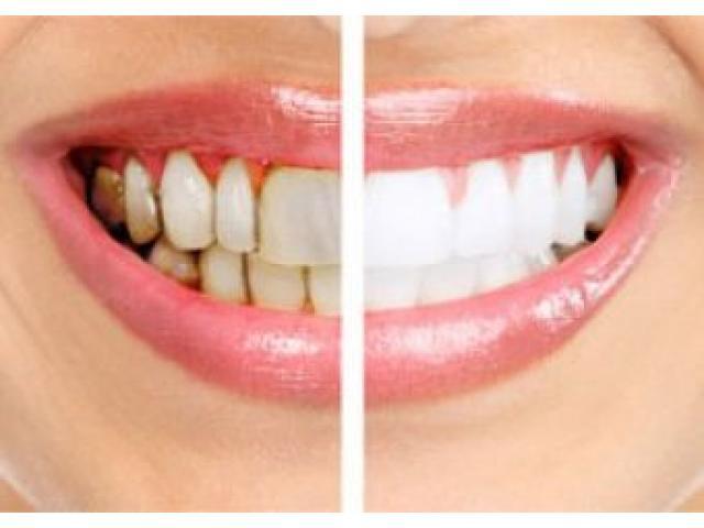 Gum surgery, Gum disease treatment in Kolkata