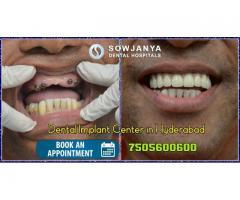 Dental Implants in Hyderabad | Best Cosmetic Dentist in Hyderabad