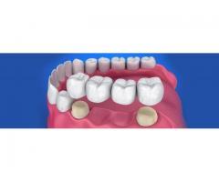 Dental crown treatment in Kolkata