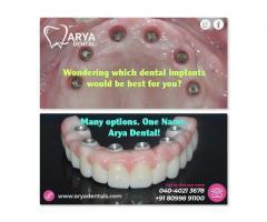 Best Dental implant hospital in Hyderabad | AryaDentals