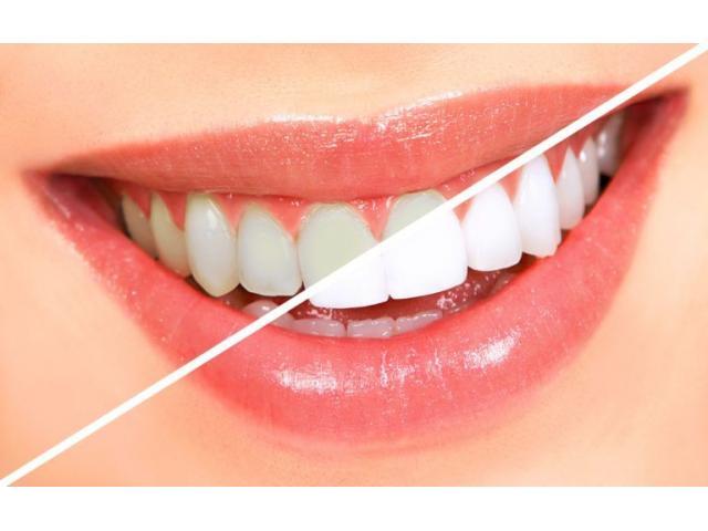 Teeth whitening cost in Pune