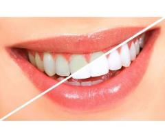 Teeth whitening cost in Pune