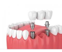 Dental implant cost in chennai - Akeela Dental Care