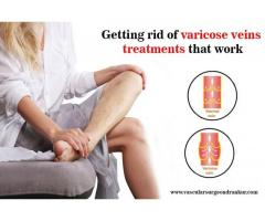 Getting rid of varicose veins treatments that work