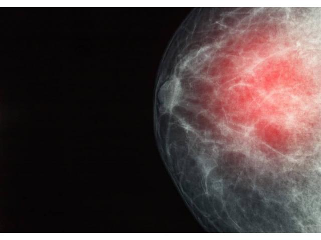 Dr. Steven Quay Dense breast tissue: What it means to have dense breasts