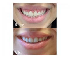 Smile Correction Treatment