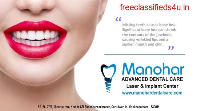 Manohar dental care fluoride treatment in vizag