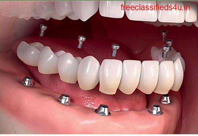 Manohar dental care best root canal doctor in vizag