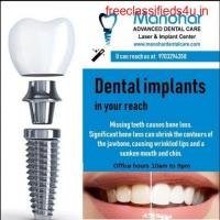 Manohar dental care best root canal treatment in vizag
