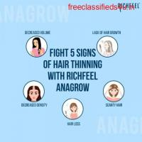 Best Hair Thinning Treatment – RichFeel Anagrow
