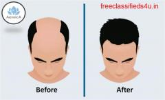 Best Hair Transplant in India