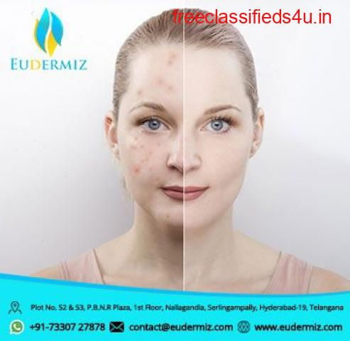 Pimple Removal Treatment in Hyderabad