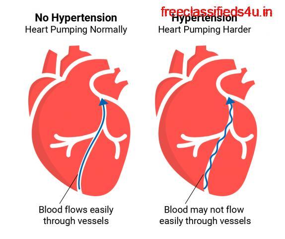 Hypertension Treatment in Ghaziabad