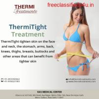 KAS MEDICAL CENTER : ThermiTight Skin Tightening Treatment in Delhi