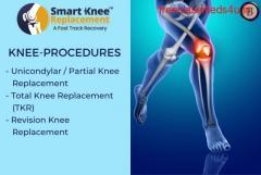 Knee Procedures