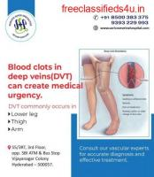 Best hospital for vascular surgery in hyderabad | Vascular surgery doctors in hyderabad