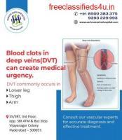 Best hospital for vascular surgery in hyderabad | Vascular surgery doctors in hyderabad