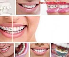 Best Doctor For Dental Treatment