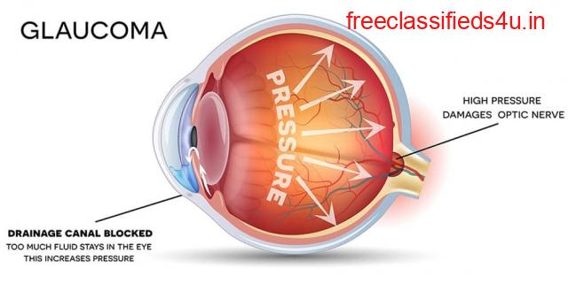 Glaucoma Surgery in Ghaziabad