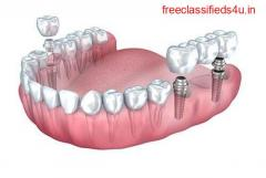 Root Canal Treatment at AK Global Dent