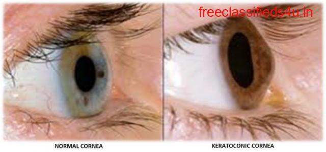 Keratoconus Eye Treatment & Surgery